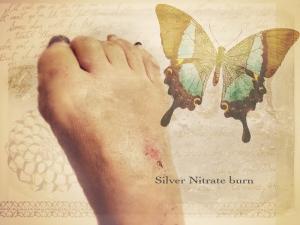 silver nitrate burn